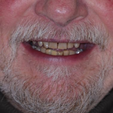 Customers teeth after treatment