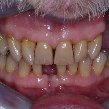Customers teeth before treatment